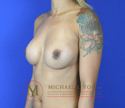 Breast Revision Before & After Patient #2063
