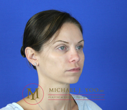 Rhinoplasty Before & After Patient #2069