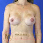 Mastectomy Breast Reconstruction Before & After Patient #2124