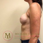 Mastectomy Breast Reconstruction Before & After Patient #2134
