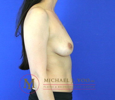 Areola Reduction Before & After Patient #2108
