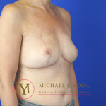 Oncoplastic Breast Reconstruction Before & After Patient #2148