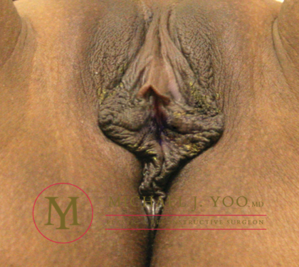 Labiaplasty Before & After Patient #2121