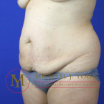 Tummy Tuck Before & After Patient #2155