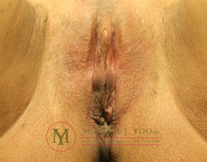 Labiaplasty Before & After Patient #2198