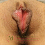 Labiaplasty Before & After Patient #2202