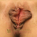 Labiaplasty Before & After Patient #2192