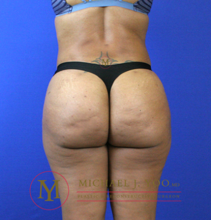 Brazilian Butt Lift Before & After Patient #2251