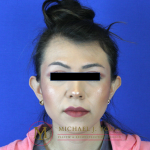 Otoplasty Before & After Patient #2258