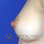 Nipple Reduction Before & After Patient #2268