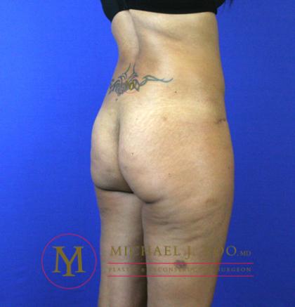 Brazilian Butt Lift Before & After Patient #2251