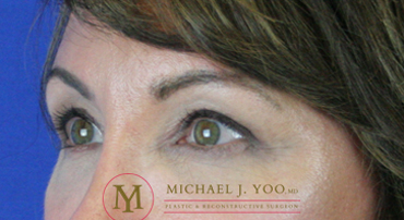 Upper Eyelid Lift Before & After Patient #2321