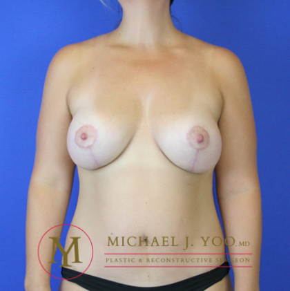 Breast Lift with Implants Before & After Patient #2294