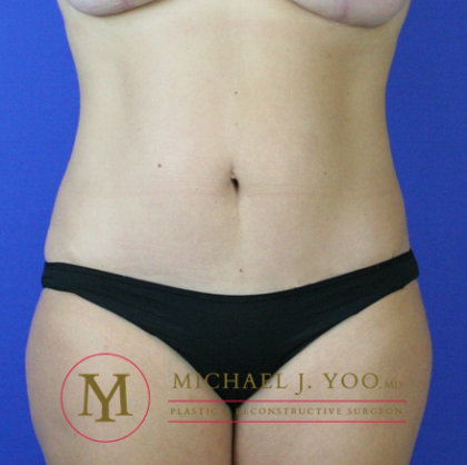 Tummy Tuck Before & After Patient #2302
