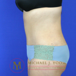 Tummy Tuck Before & After Patient #2311