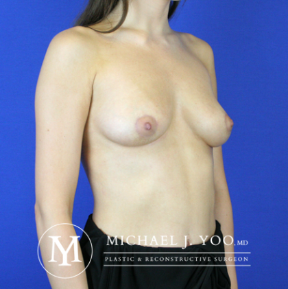 Areola Reduction Before & After Patient #2287
