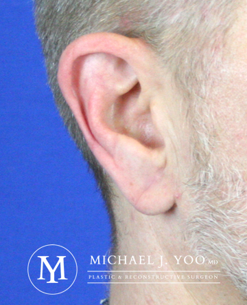 Earlobe Repair Before & After Patient #2326