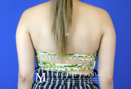 Liposuction Before & After Patient #2417