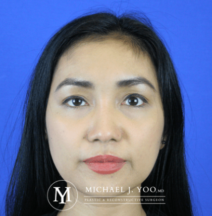 Fillers Before & After Patient #2447