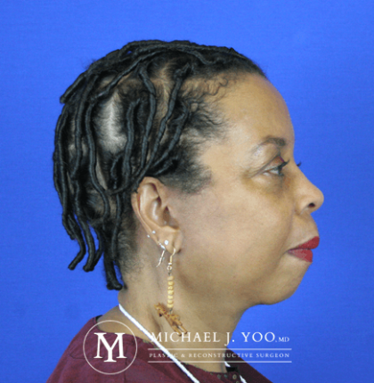 Facelift & Neck Lift Before & After Patient #2437