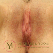 Labiaplasty Before & After Patient #2465