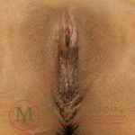 Labiaplasty Before & After Patient #2468