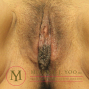 Labiaplasty Before & After Patient #2462