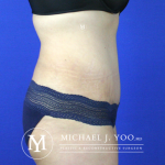 Tummy Tuck Before & After Patient #2515