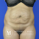Tummy Tuck Before & After Patient #2507