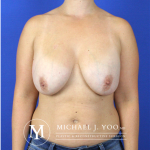 Breast Lift with Implants Before & After Patient #2524