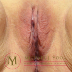 Labiaplasty Before & After Patient #2557