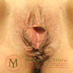 Labiaplasty Before & After Patient #2560