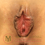 Labiaplasty Before & After Patient #2573
