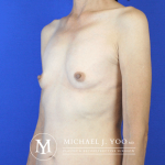 Breast Augmentation Before & After Patient #2563