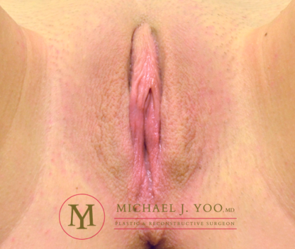 Labiaplasty Before & After Patient #2579