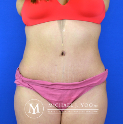 Tummy Tuck Before & After Patient #2582