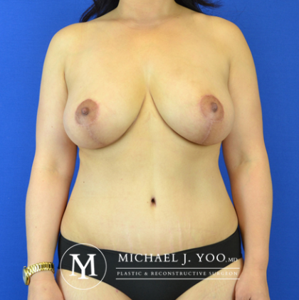 Mommy Makeover Before & After Patient #2589