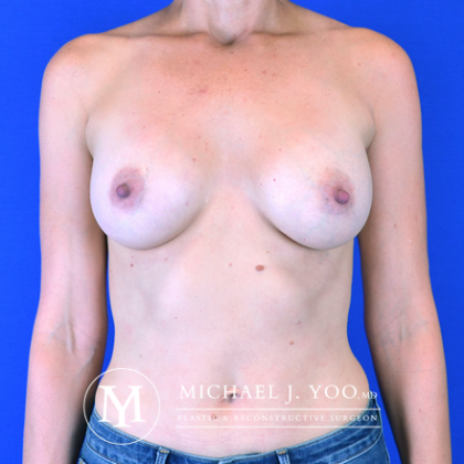 Breast Augmentation Before & After Patient #2634