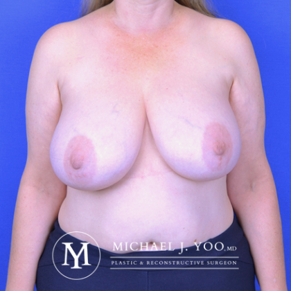Breast Reduction Before & After Patient #2610
