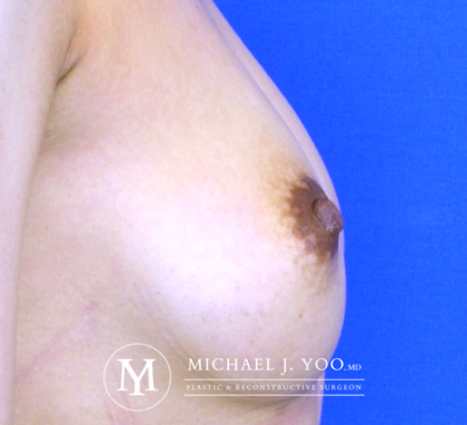 Nipple Reduction Before & After Patient #2668
