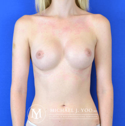 Breast Augmentation Before & After Patient #2764