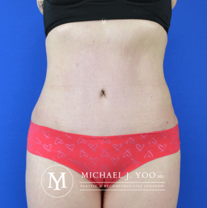 Tummy Tuck Before & After Patient #2689