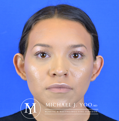 Otoplasty Before & After Patient #2832