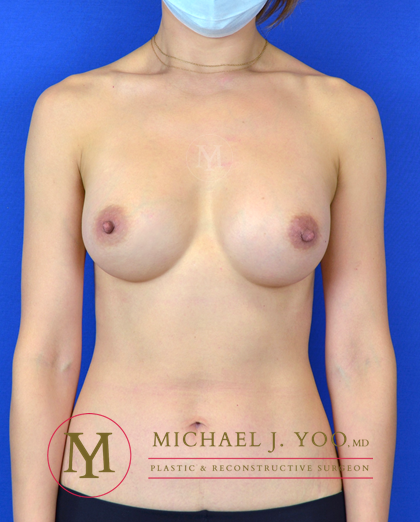 Breast Augmentation Before & After Patient #2863
