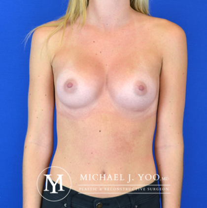Breast Augmentation Before & After Patient #2870