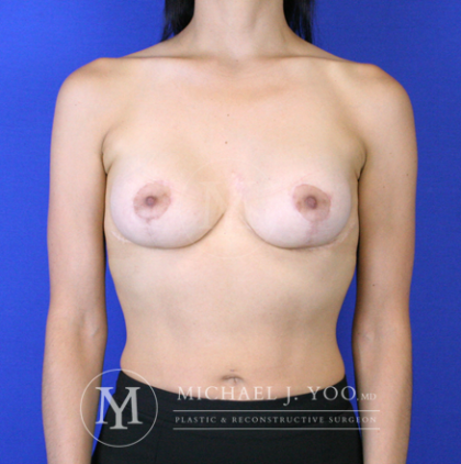 Breast Lift with Implants Before & After Patient #2926