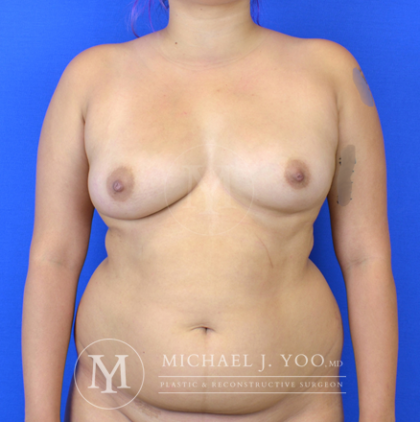 Breast Fat Transfer Before & After Patient #2933