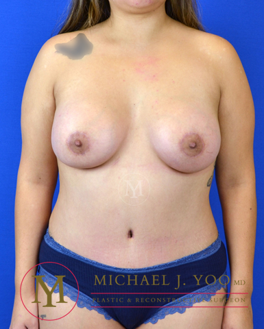Breast Augmentation Before & After Patient #3016