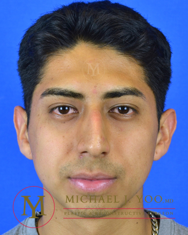 Rhinoplasty Before & After Patient #3091