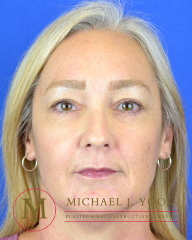 Upper Eyelid Lift Before & After Patient #3087